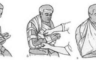 Как накладывать шину на нижние конечности