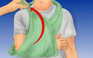 Как делать шину для перелома