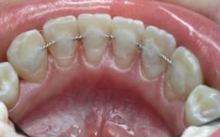 Как ставят шины на зубы